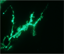 Propagation of a GFP-tagged Pto DC3000 in leaf secondary veins of an active (...)