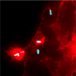 Human HeLa cells infected with Shigella flexneri (in red: Actin; in blue: (...)
