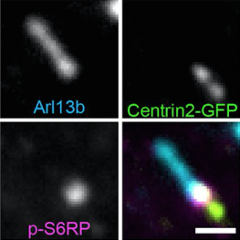 Double immunostaining of an E14.5 Centrin-2-GFP control cortical (...)