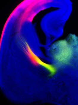 axonal tracing showing thalamocortical (green) and corticothalamic (red) (...)